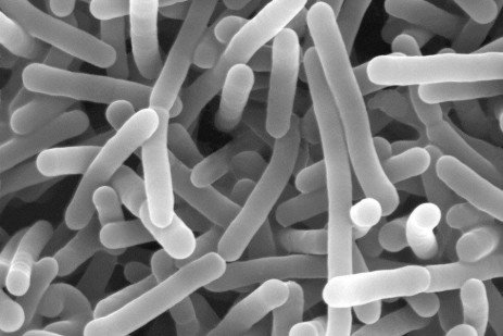 Control of Listeria monocytogenes in Meat and Poultry