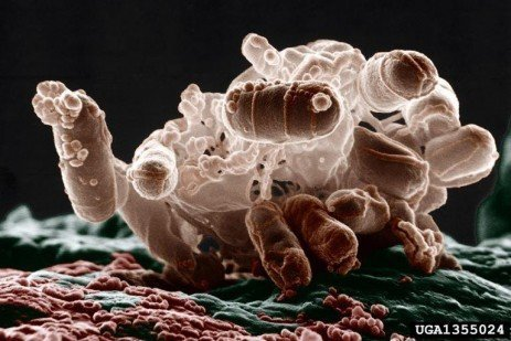 Reducing the Risks of Pathogenic E. Coli Infections