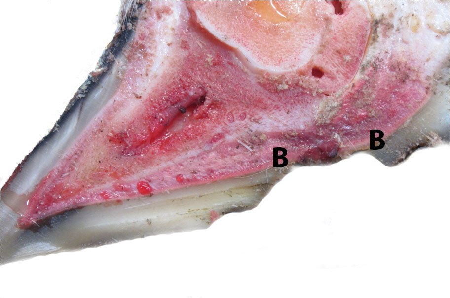 This is the same claw as in the previous image. Almost all of the defective/under-run sole tissue has been removed, although a defect (dark line) in the sole is still evident at the anterior aspect of the ulcer. The separated sole has also been removed from the periphery of the ulcer, so that the sole is now firmly attached to the corium (B).